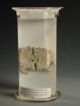Emberi agy metszet